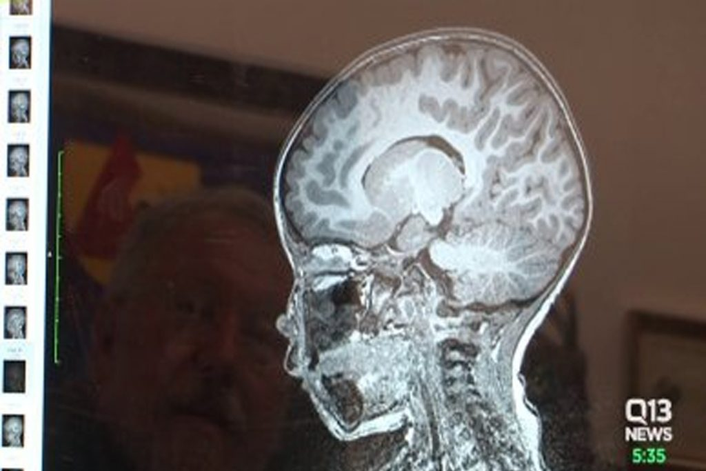 desarrollo adecuado del cerebro.